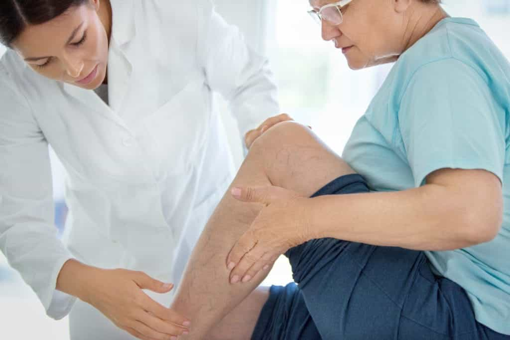 Seeing Doctor for Varicose Veins | Burt's Pharmacy and Compounding Lab